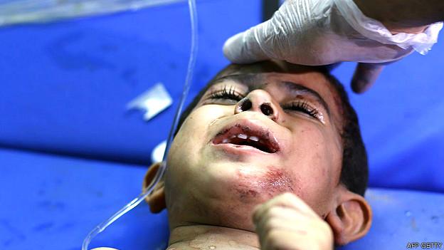 Niño herido en Gaza