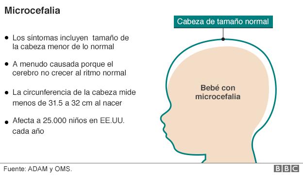 Gráfico sobre la microcefalia