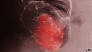 Rayos X mostrando cáncer del colon